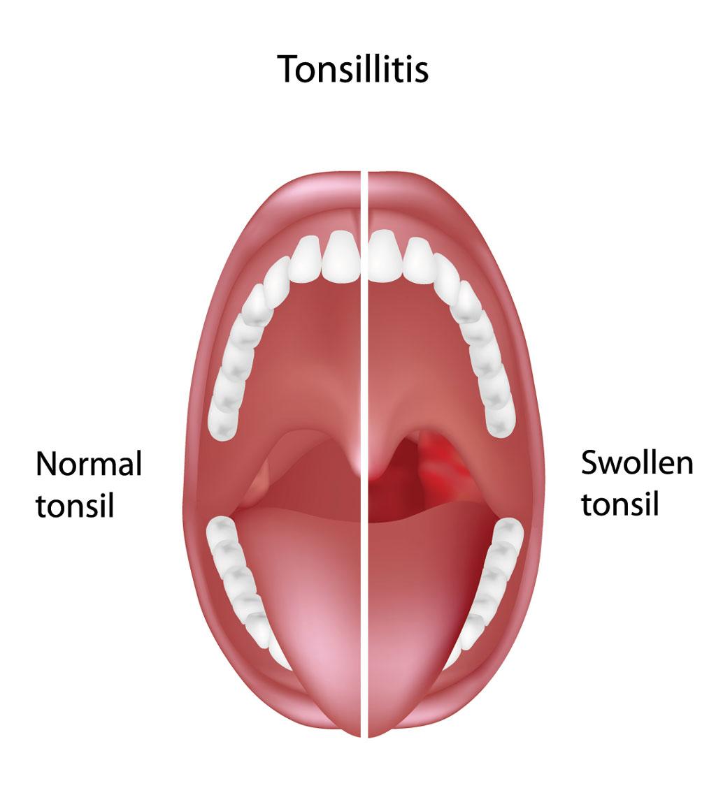 tonsil hypertrophy, tonsillitis