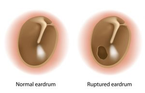 eardrum rupture, known as a tympanic membrane perforation,