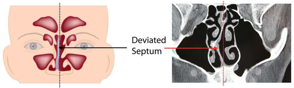 Deviated Septum causes nasal obstruction