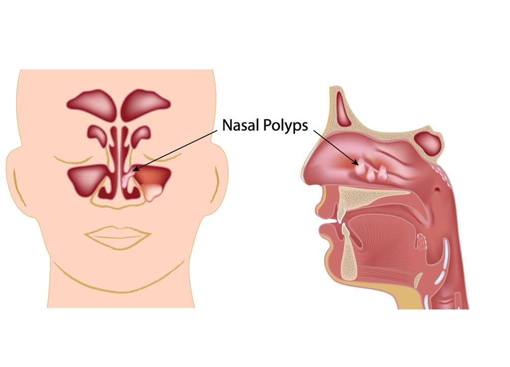 nasal obstruction due to polyps