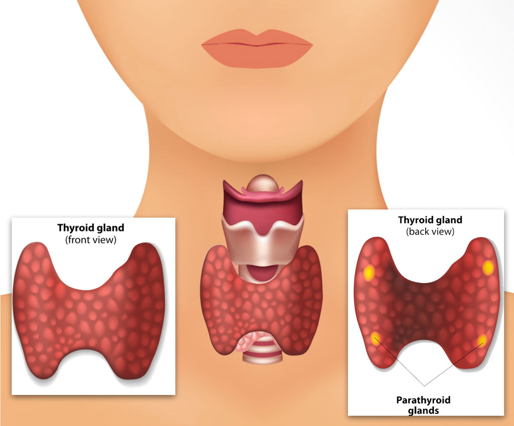Parathyroid Disease And Surgery Parathyroidectomy Otolaryngology Specialists Of North Texas